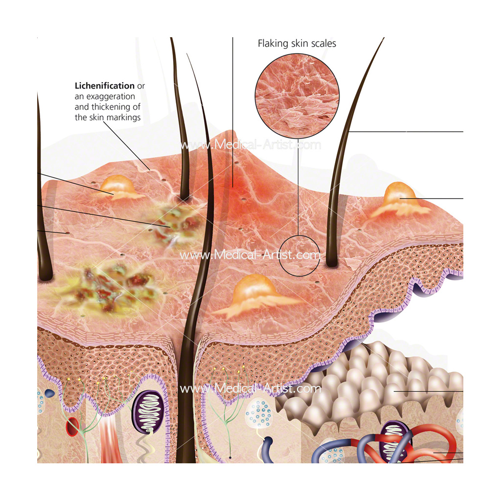 Close up section of skin with eczema