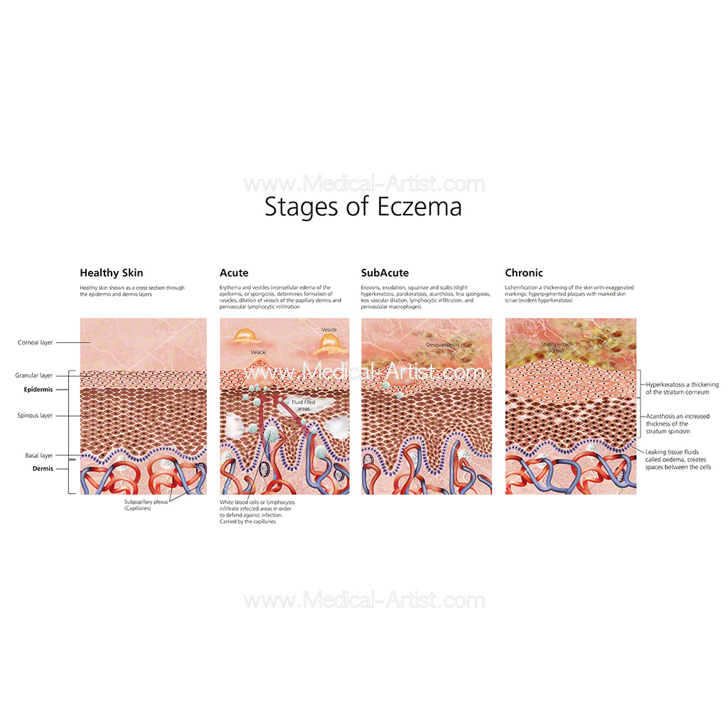 Skin illustrations & skin anatomy created by qualified medical ...