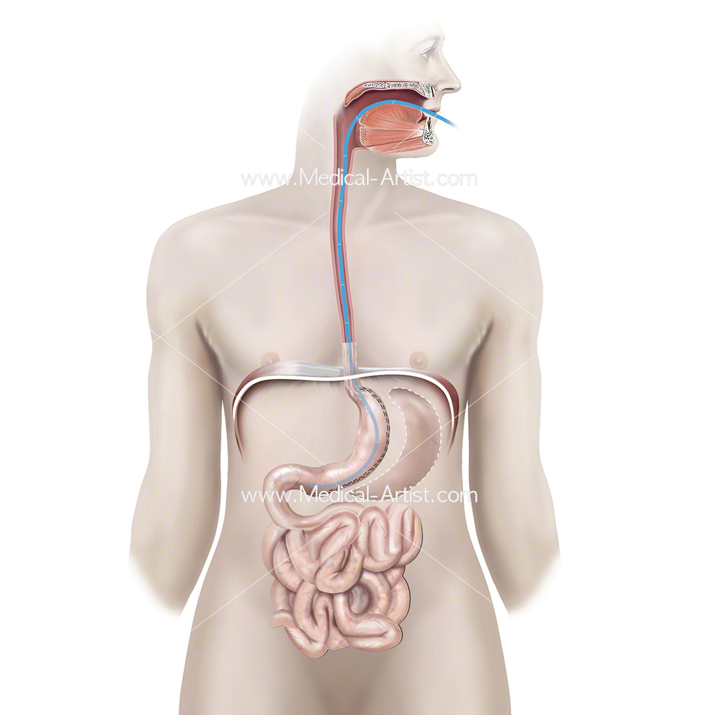 Illustration of sleeve gastrectomy showing stomach removal