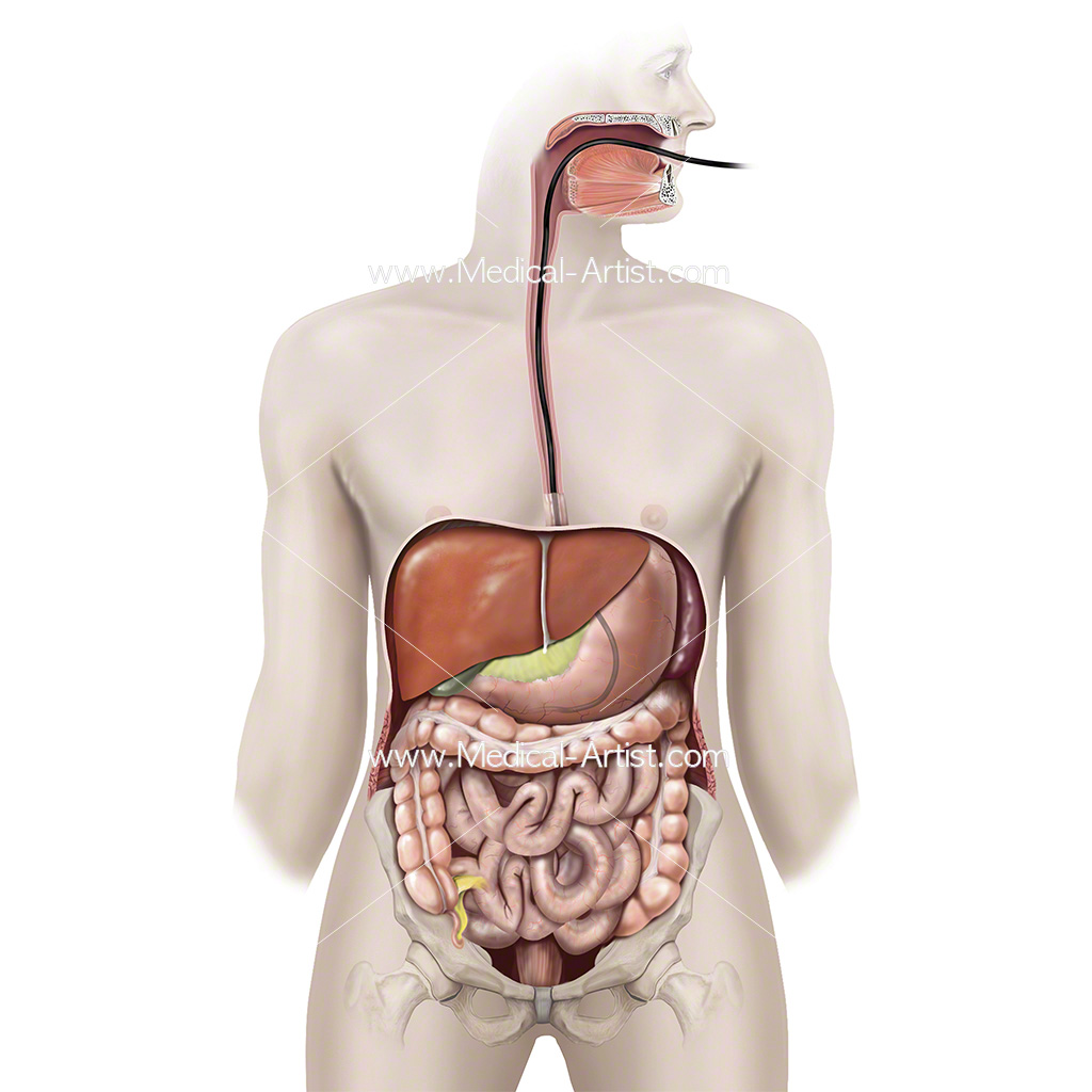Illustration showing the procedure for placement of a tube into the stomach