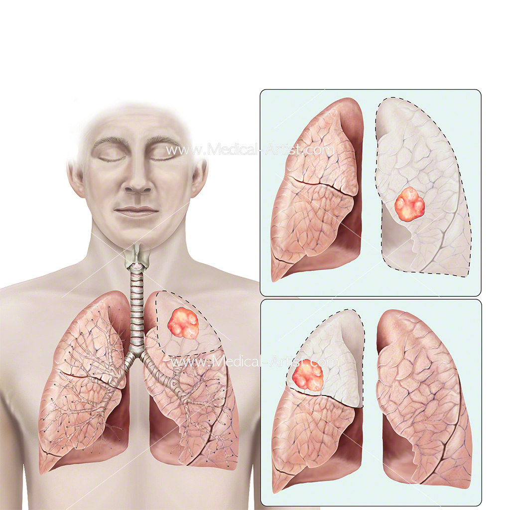Various locations for lung cancer illustration