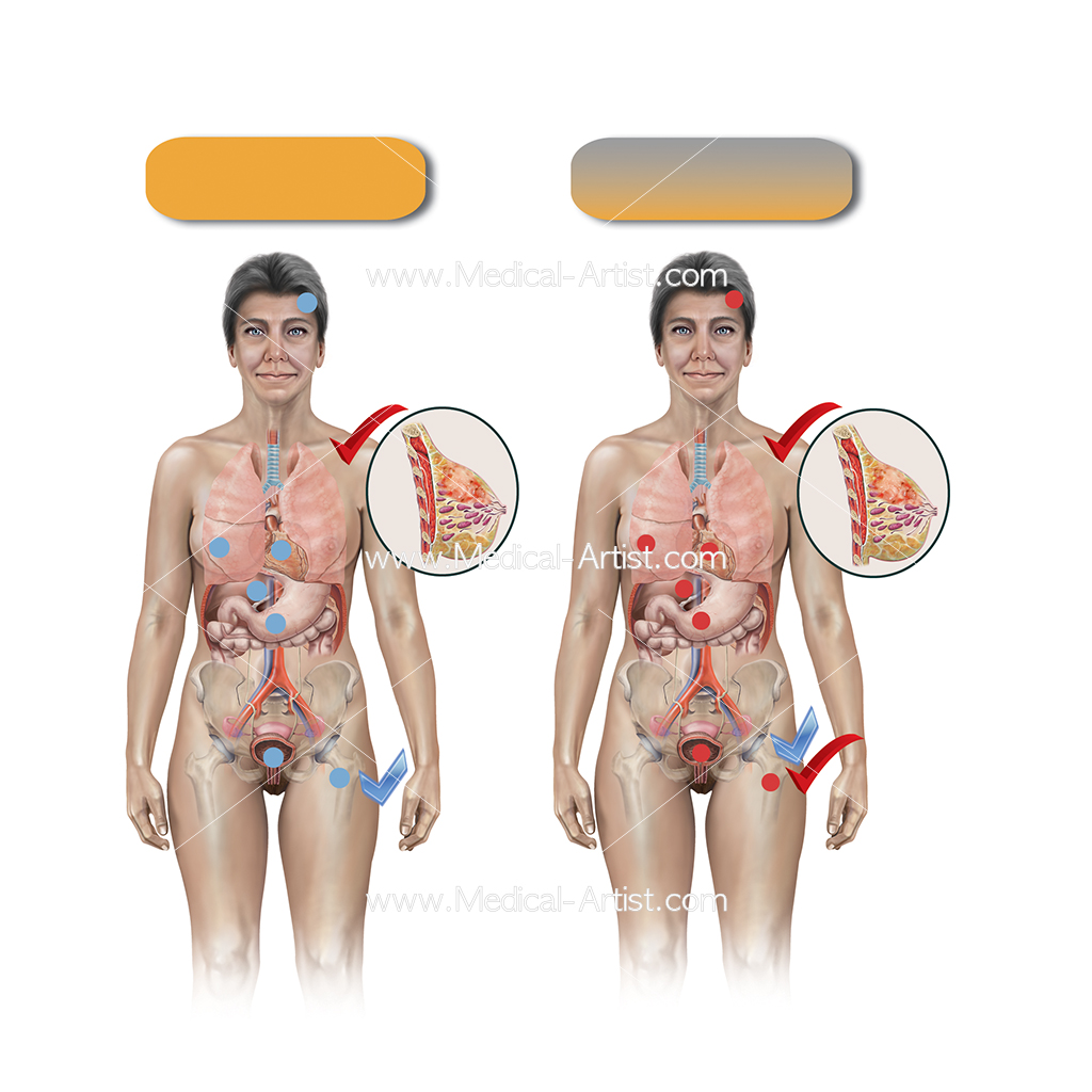 Hormone replacement chart illustration with two female figures