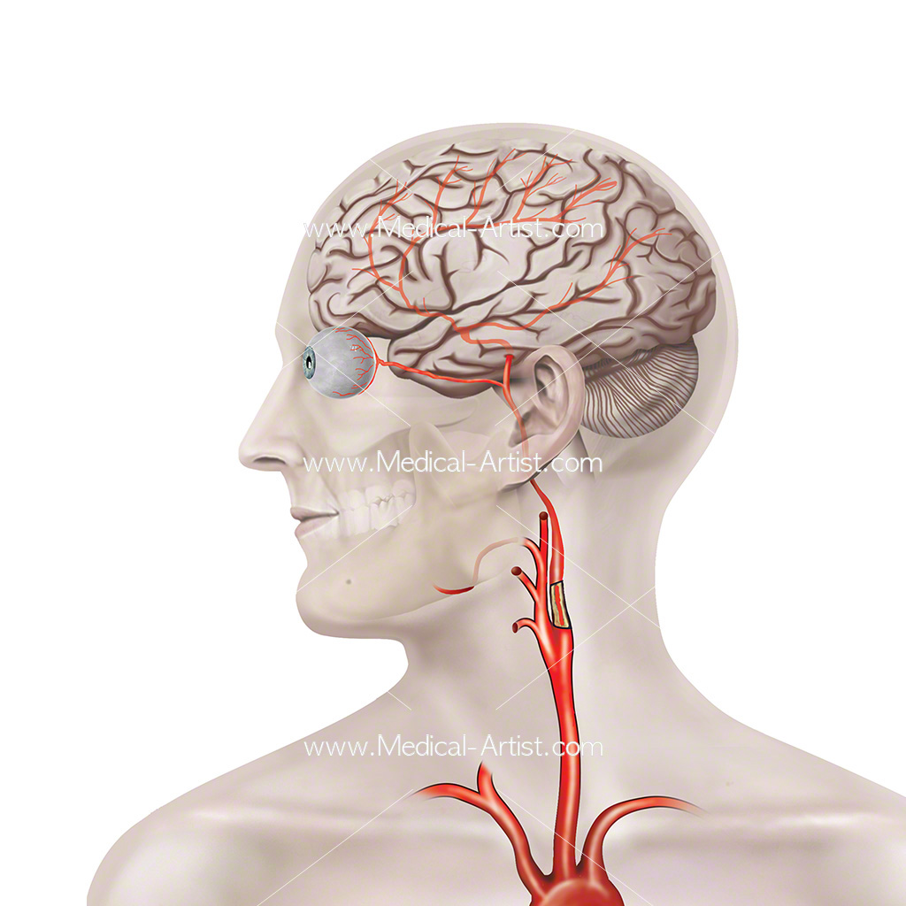 Blocked carotid artery medical illustration