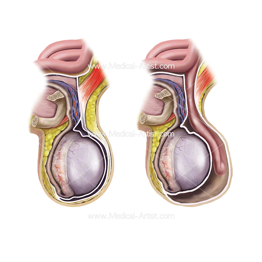 Testicle anatomy and scrotal hernia medical illustration