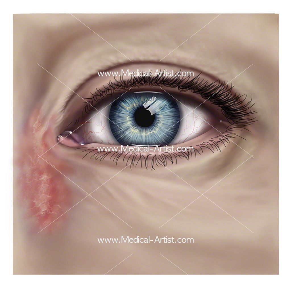 Dacrocystitis of the eye, infection of the lacrimal sac