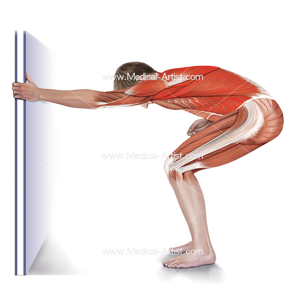 Medical illustration showing one arm lateral stretch