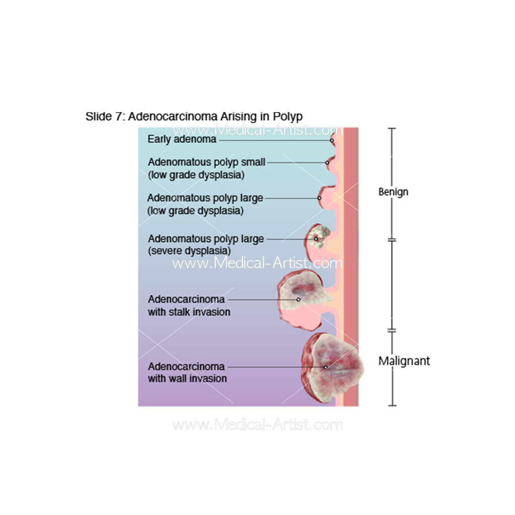 Diagram of adenocarcinoma arising in a polyp