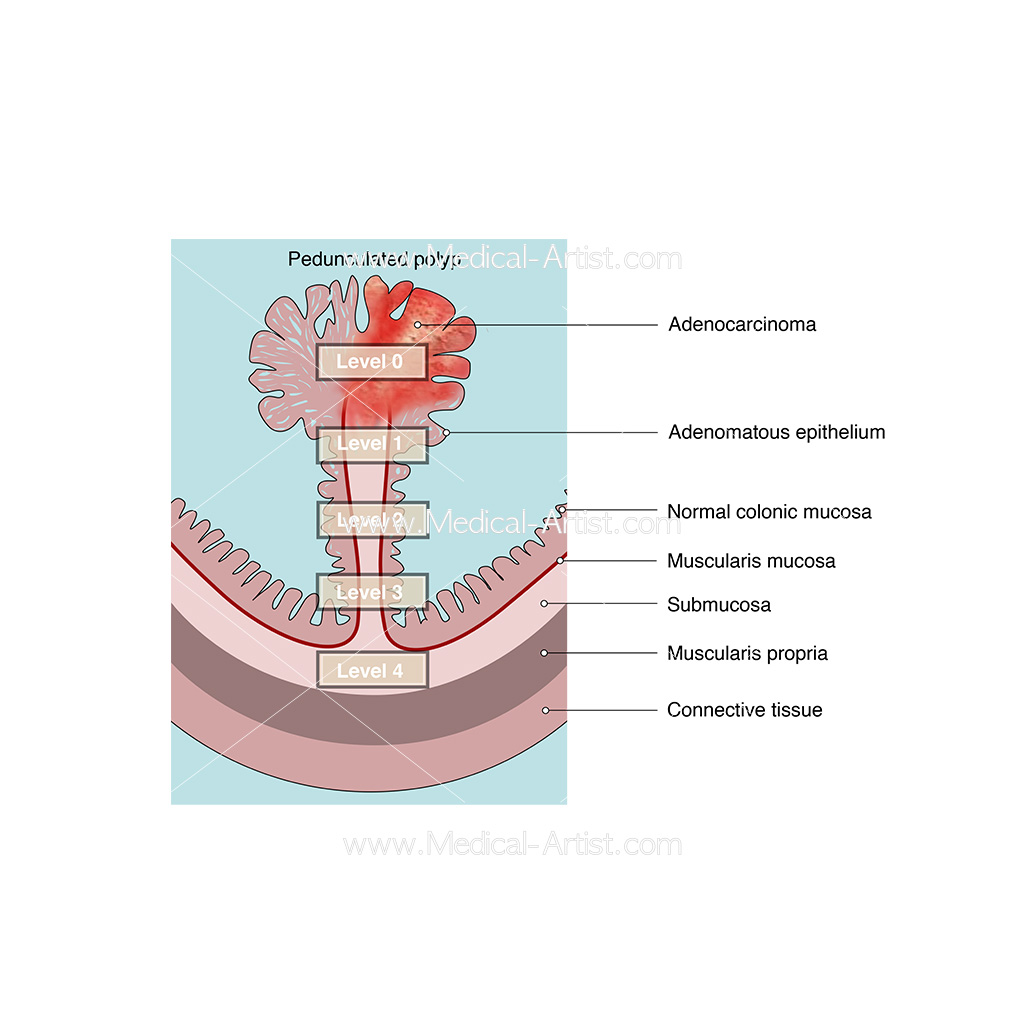 Diagram of section of the bowel with infected polyp