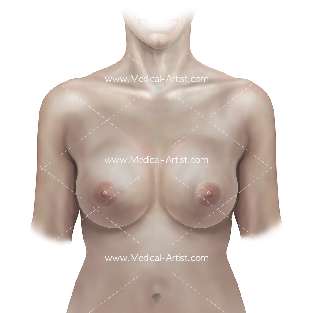 Illustration of female breasts anterior view