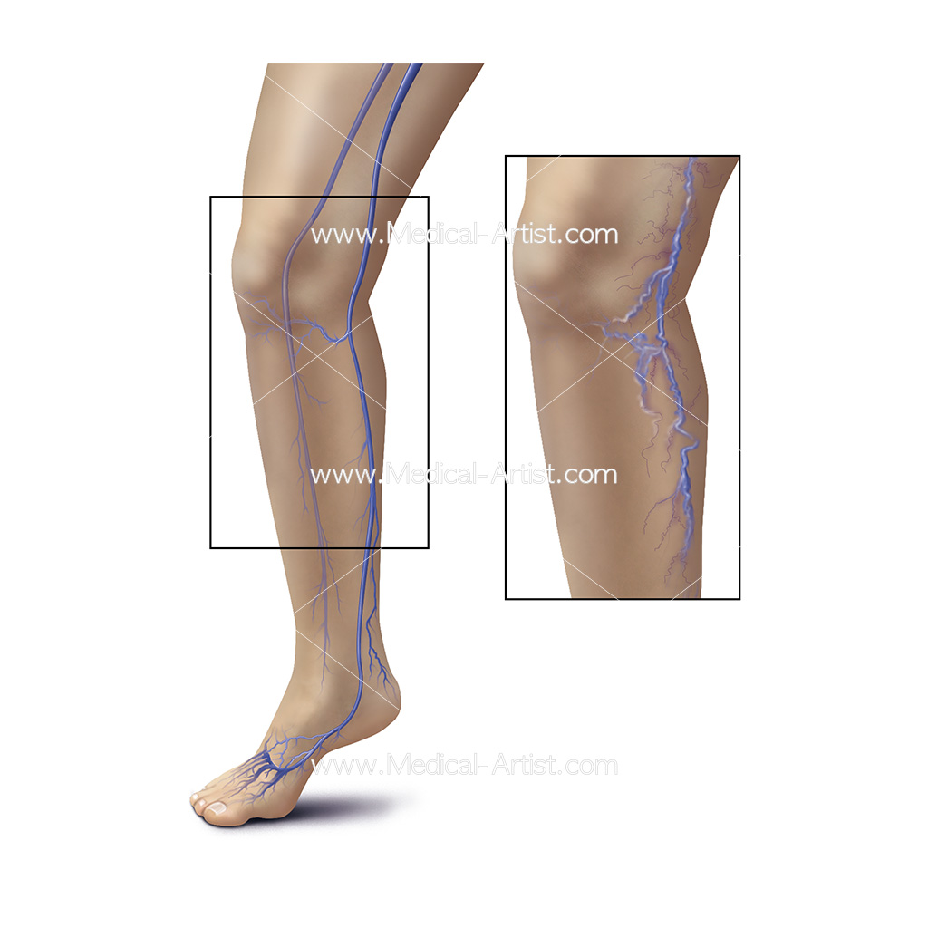 Illustration showing healthy veins compared to varicose viens