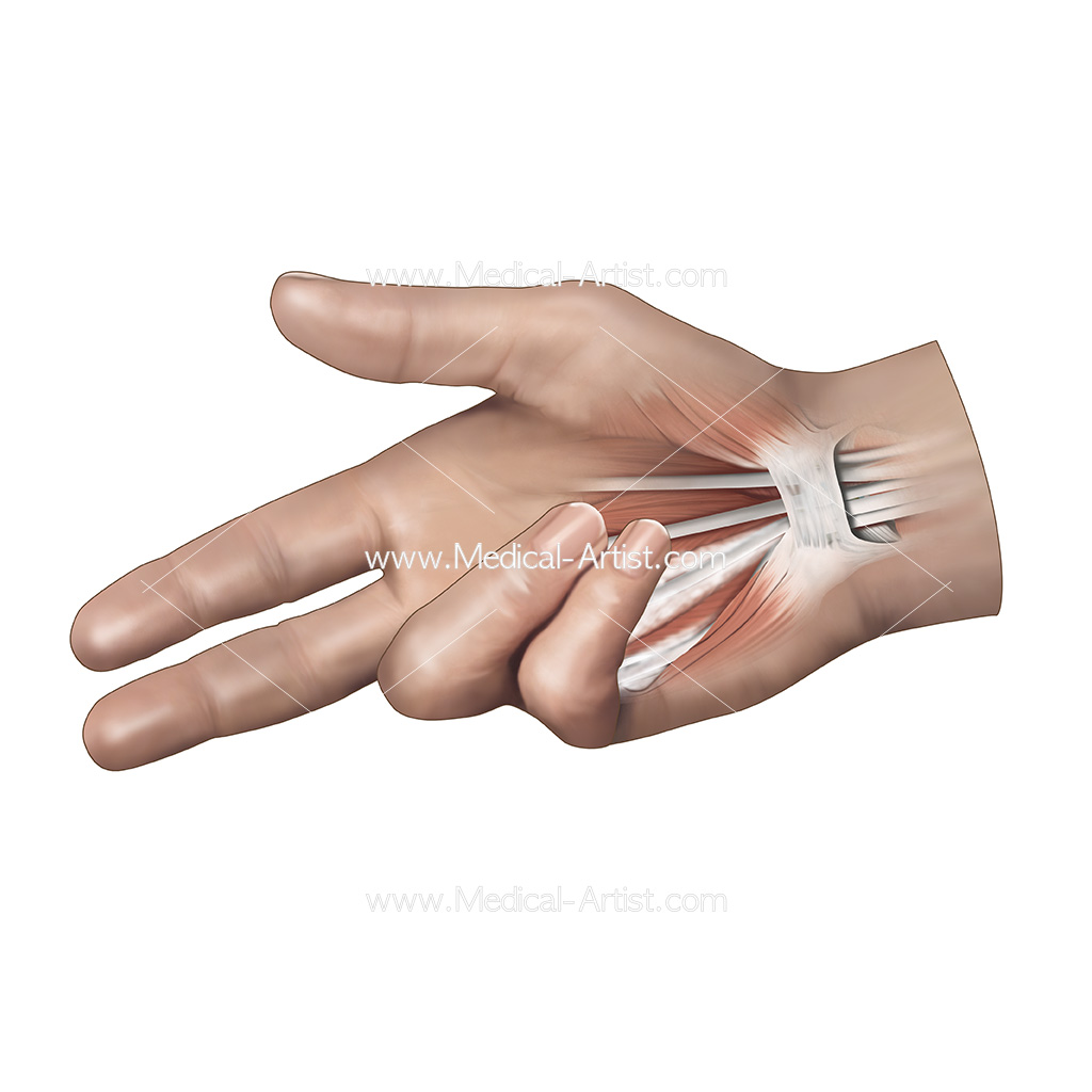 Illustration showing dupuytren's contracture of the hand