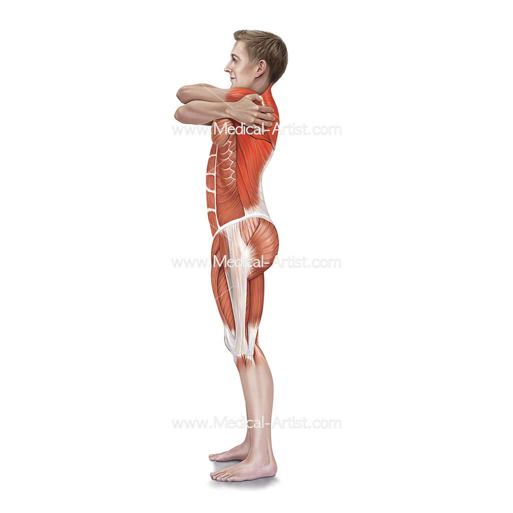 Medical illustration of the wrap around stretch