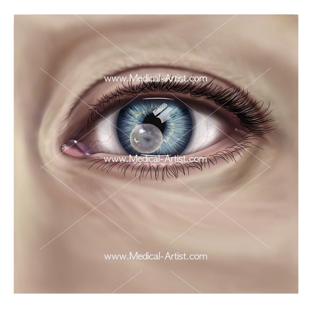 Corneal ulcer of the eye