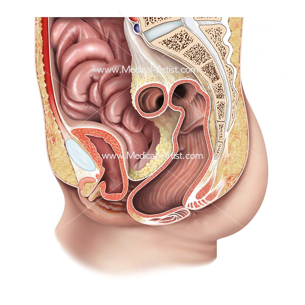 Female anatomy showing an enterocele