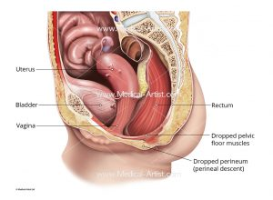 Perineal descent