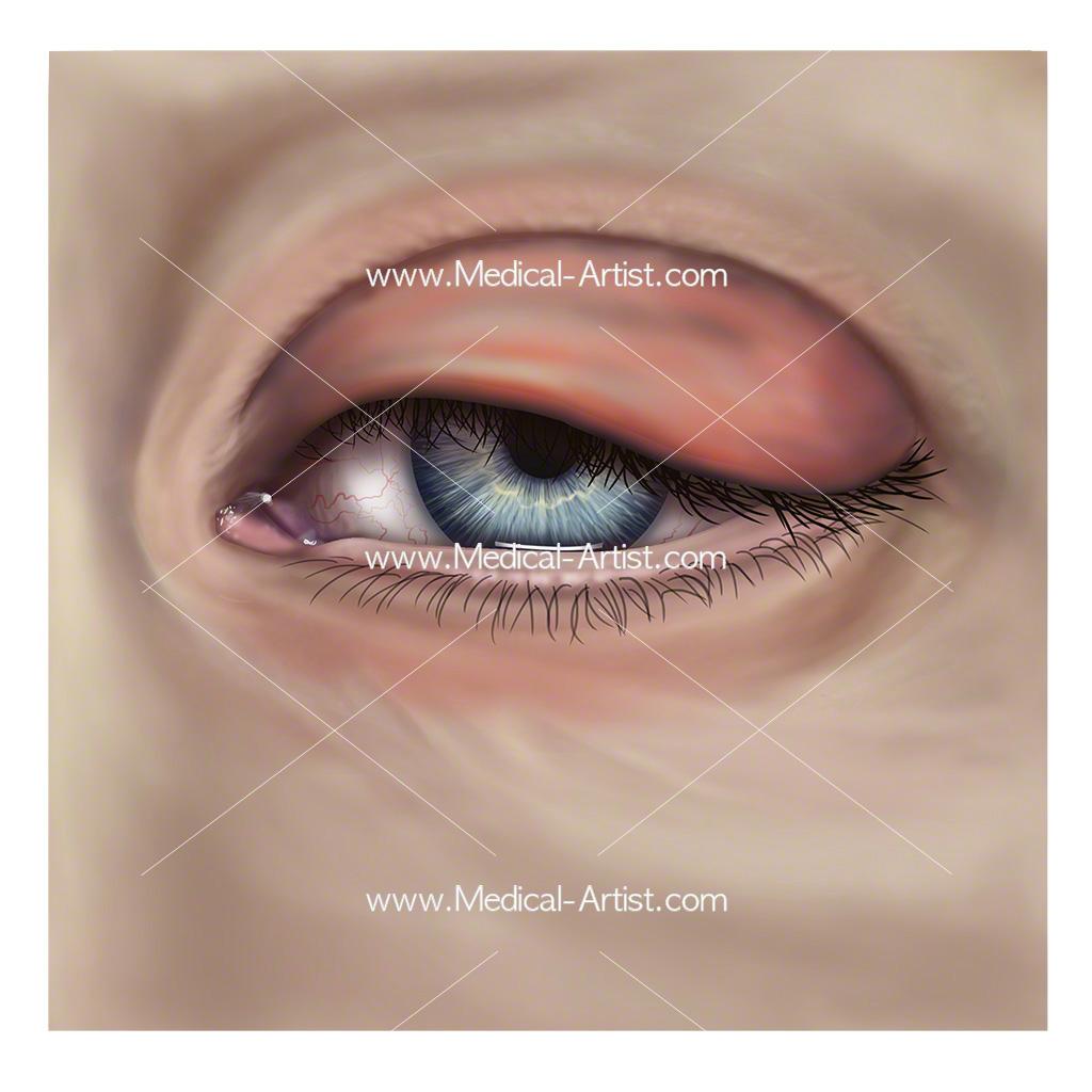 Periorbital cellulitis of the eye