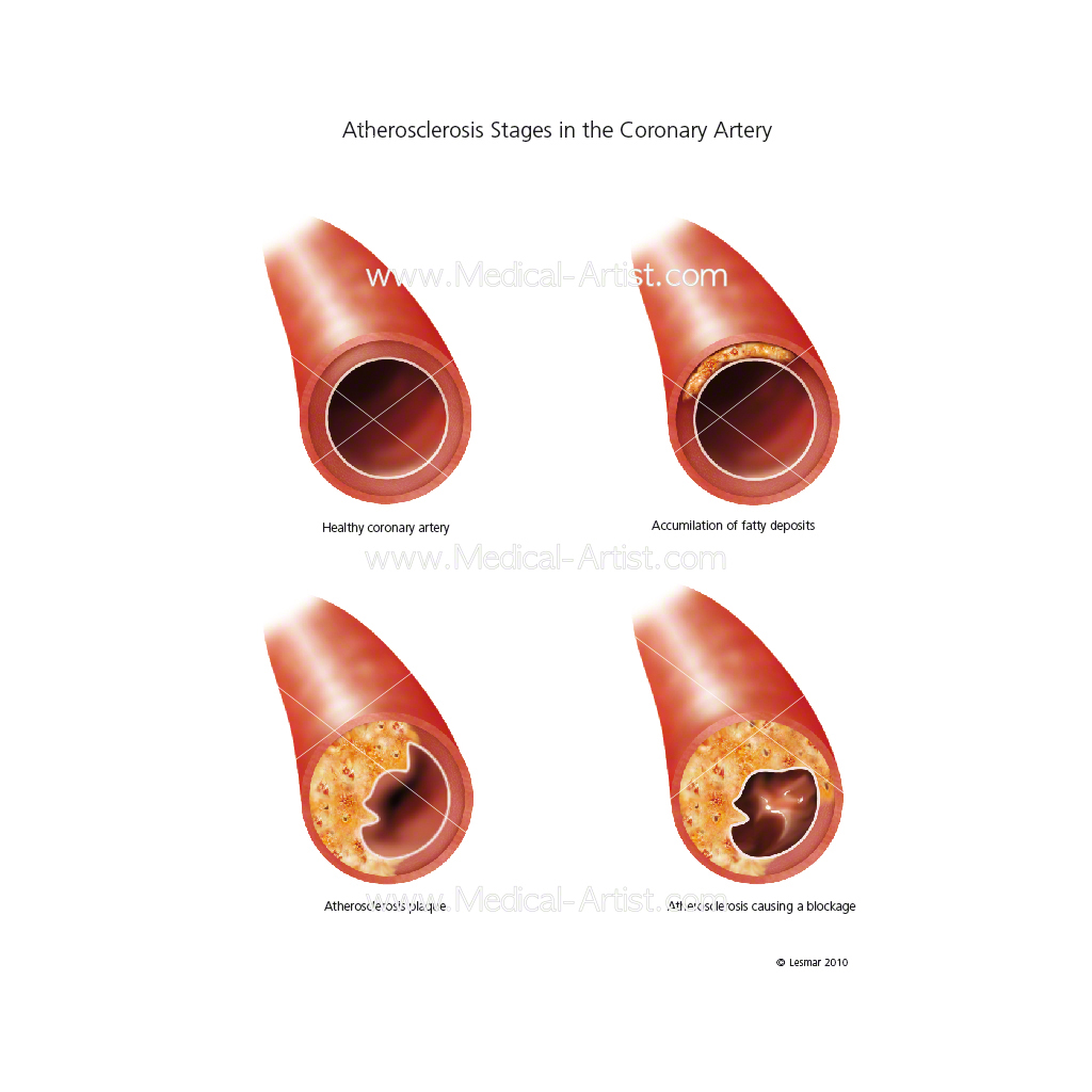 Atherosclerosis stages in the coronary artery