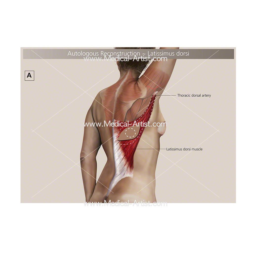 Autologous breast reconstruction