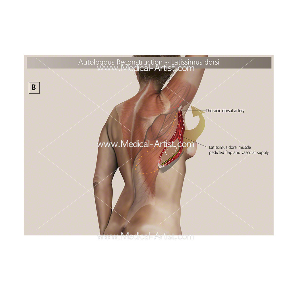 Autologous breast reconstruction Autologous breast medical illustration