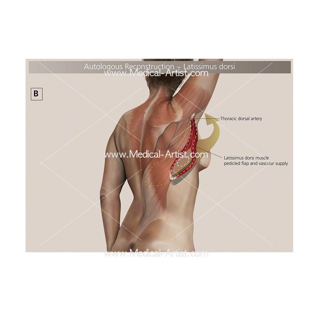 Autologous breast reconstruction Autologous breast medical illustration