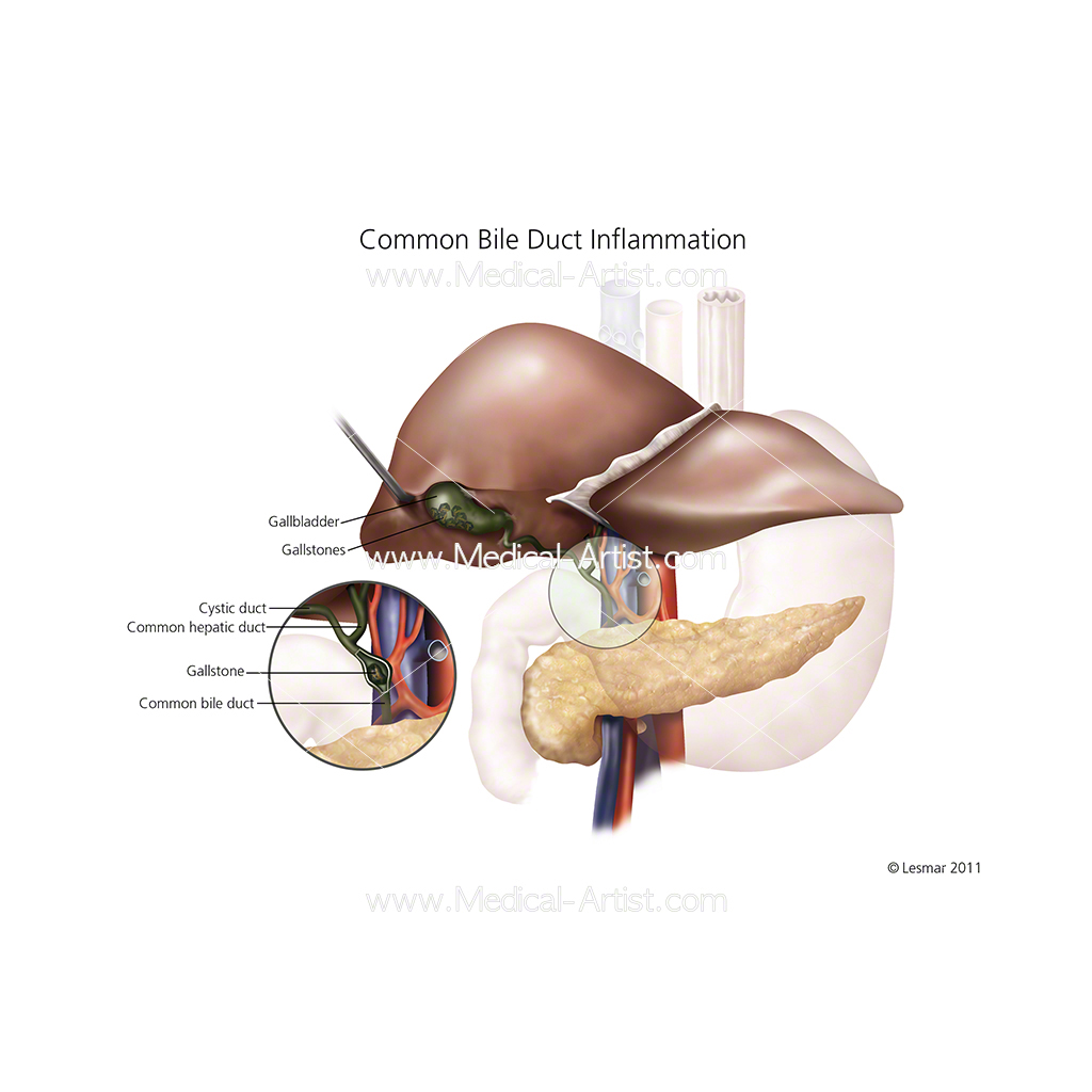 Common bile duct inflamation