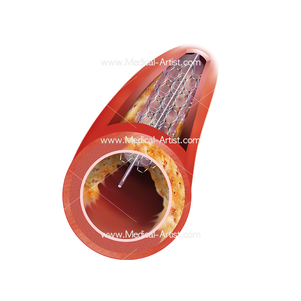 Coronary stenosis with coronary angioplasty