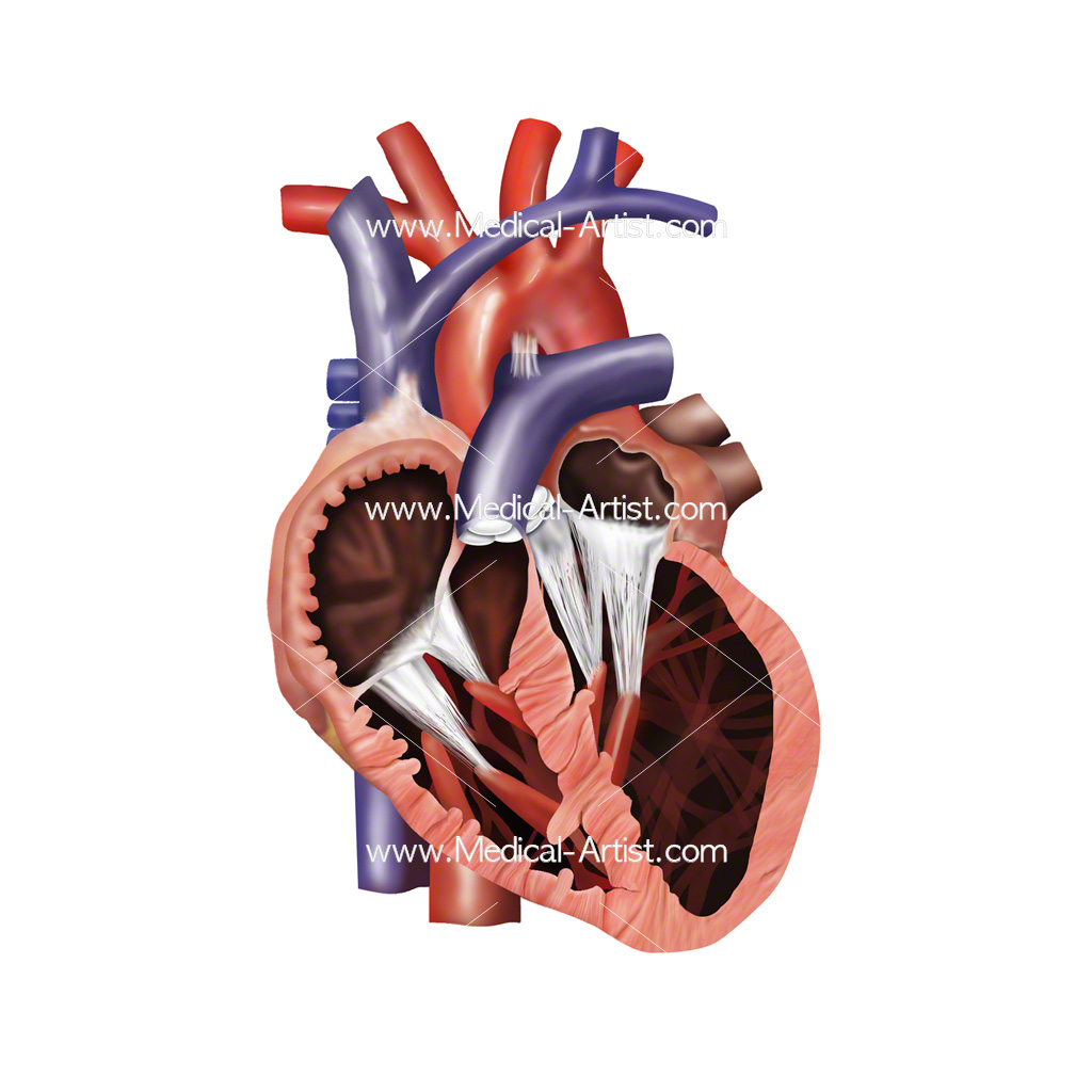 Medical illustration showing dilated cardiomyopathy