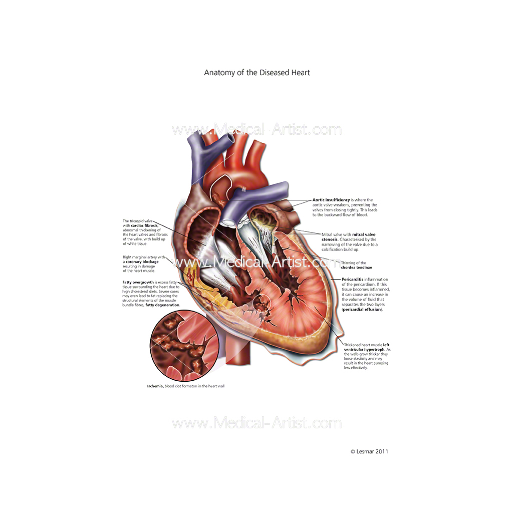 Anatomy of the diseased heart