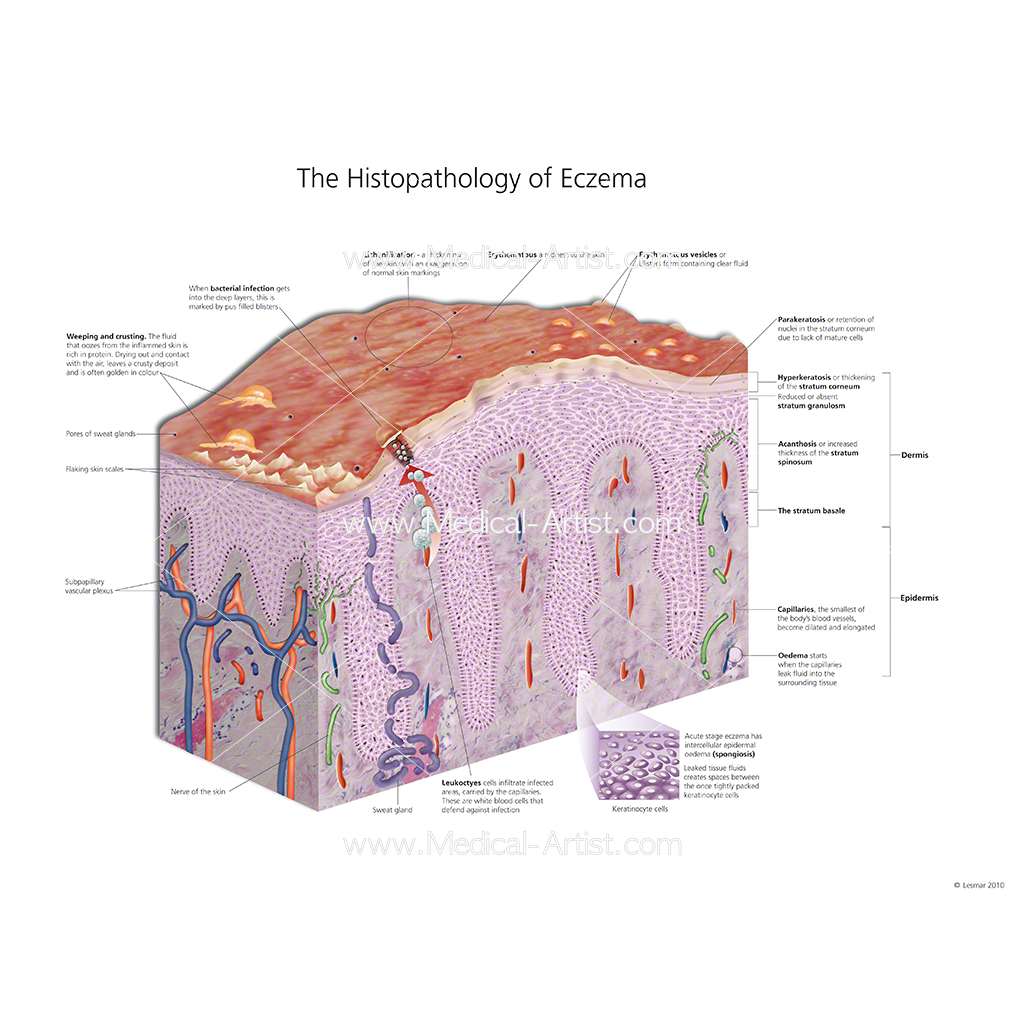 Histopathology of eczema