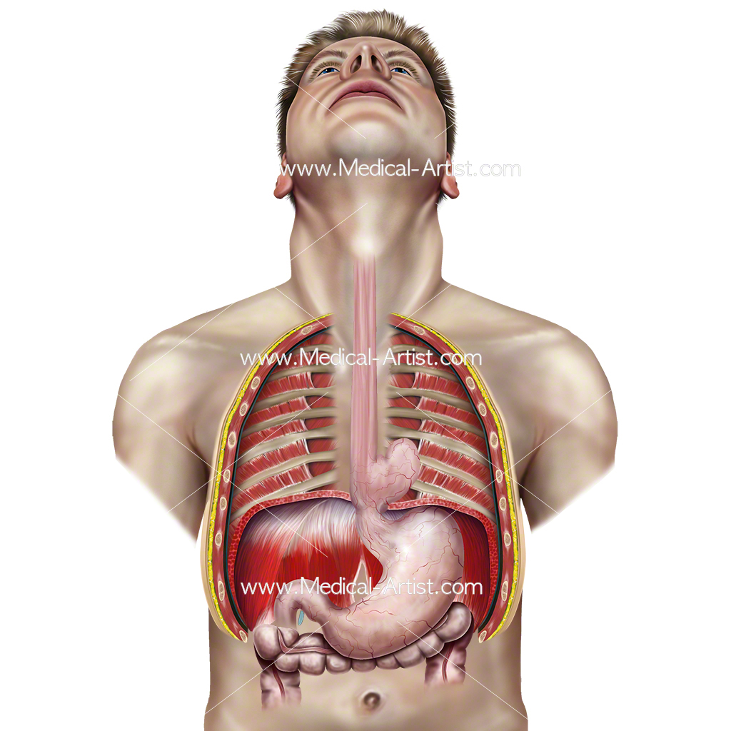 Surgery Illustrations | Creating Medical Illustrations for Surgery ...