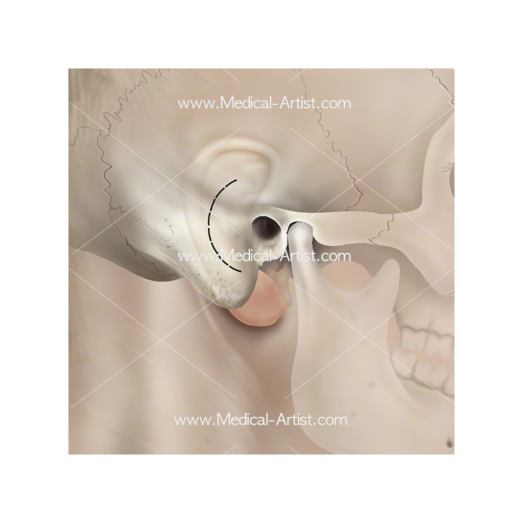 Ent Illustrations Ear Nose Throat Anatomy Medical Illustrations