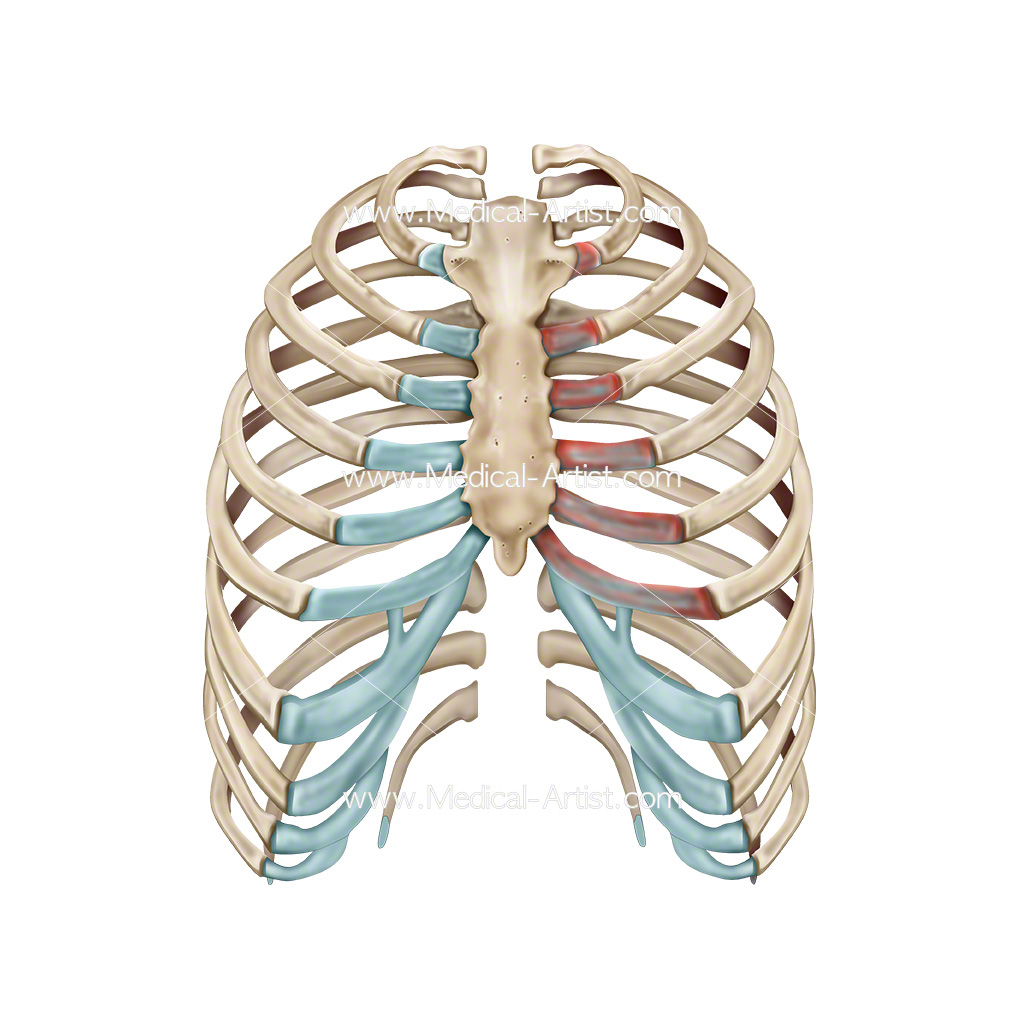 Costochondritis inflammation of the cartilage