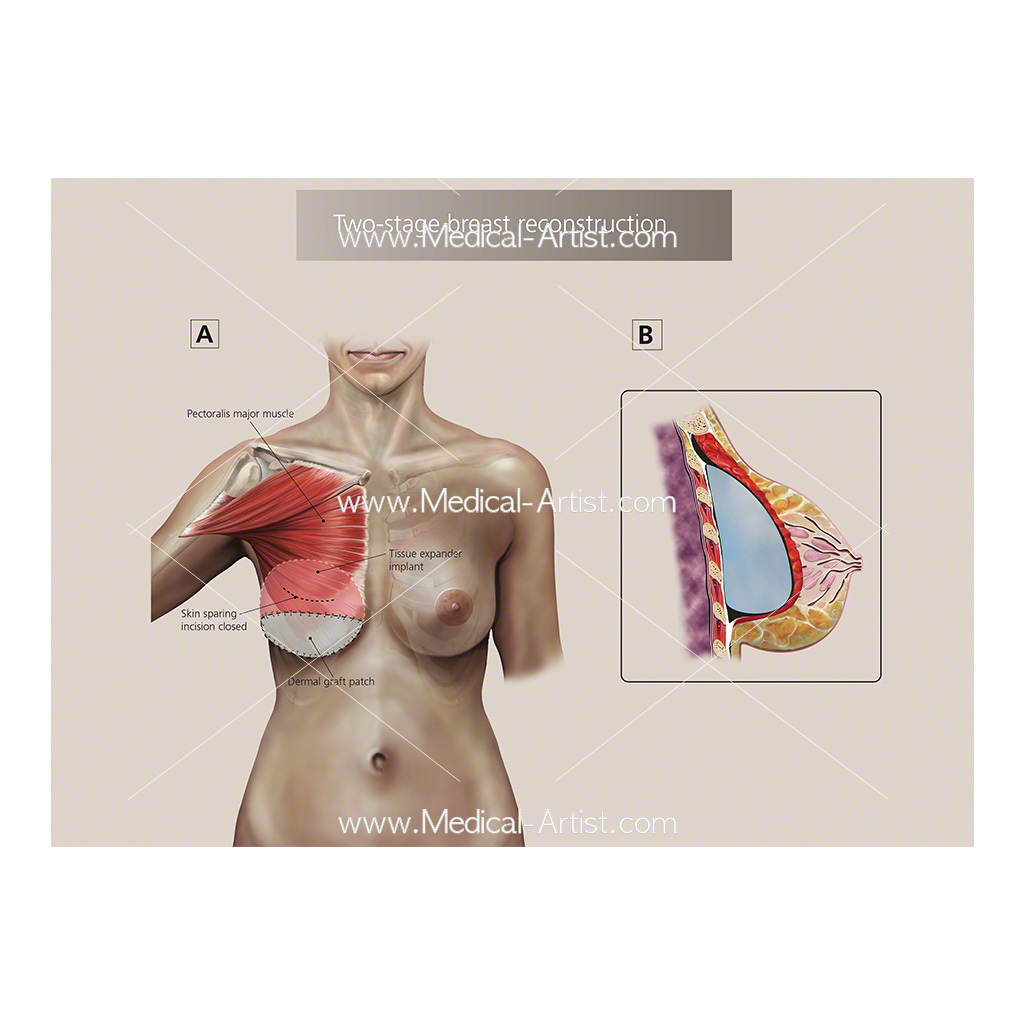 Two stage breast reconstruction surgery