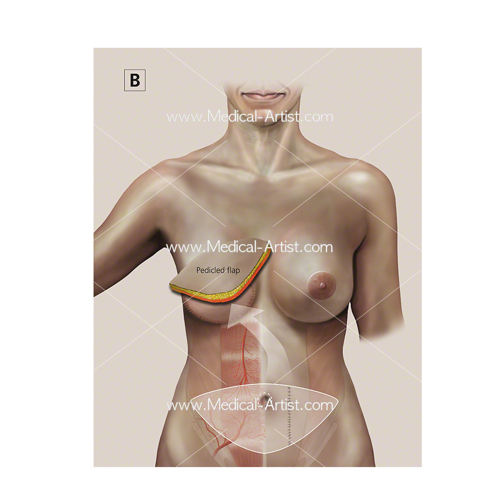 Transverse rectus abdominis surgery