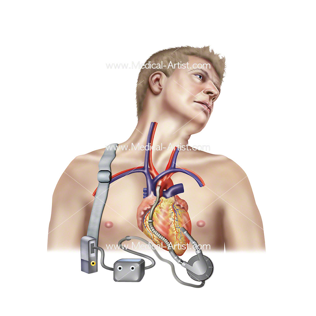 A ventricular assist device, VAD