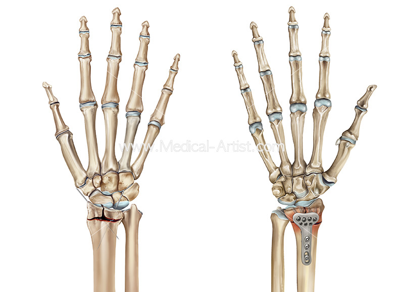 Silver Institute of Medical Illustrators Award - Wrist repair