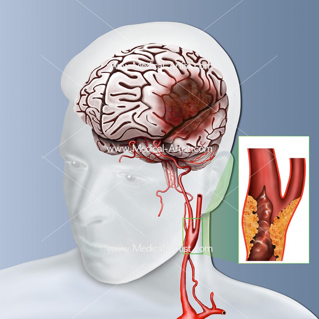 A blocked carotid artery