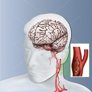 Carotid artery with blockage