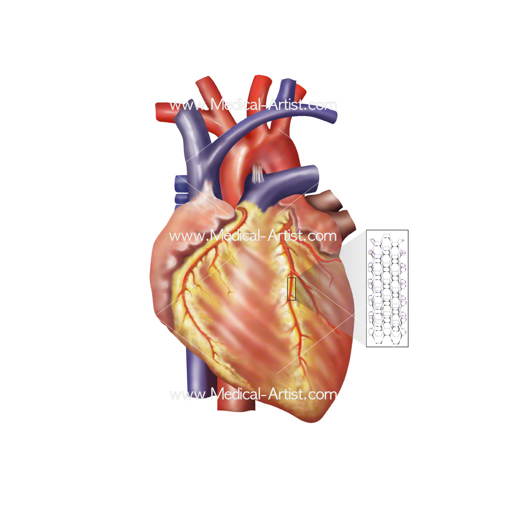 Medical illustration showing heart stent