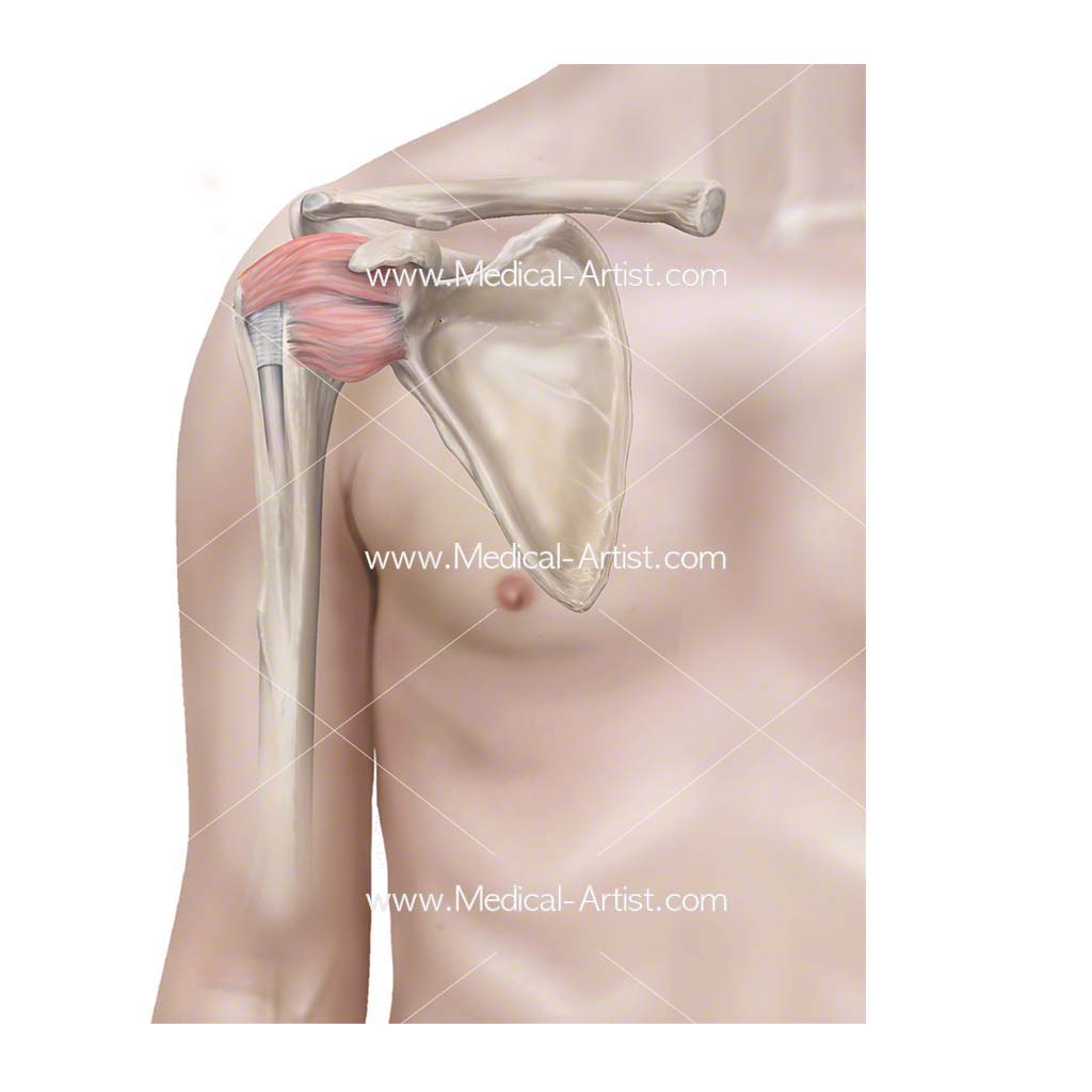 Inflamed shoulder capsule