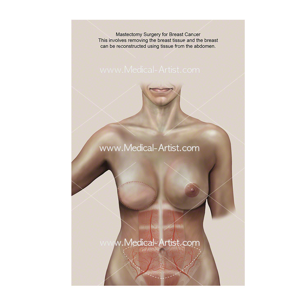 Mastectomy breast surgery medical illustration
