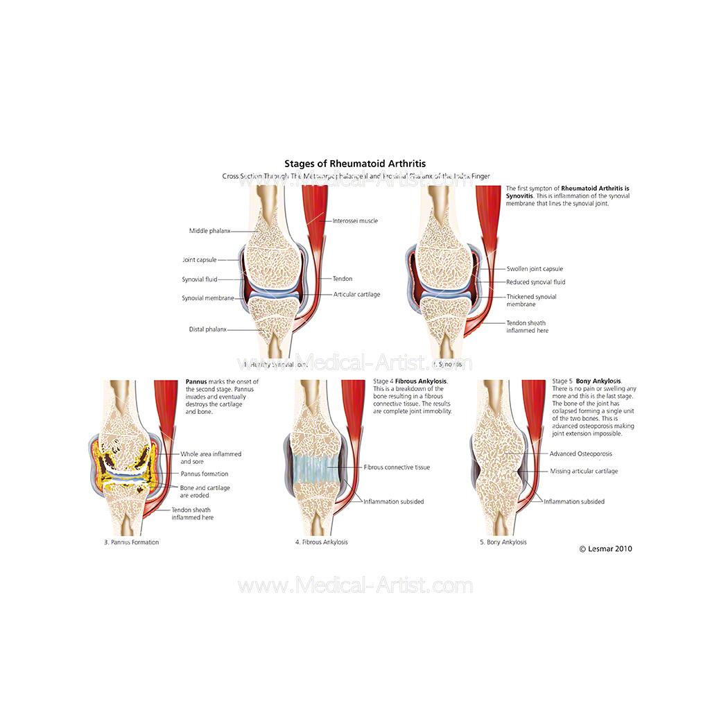 Rheumatoid Arthritis Ra Anatomy Images Medical Illustrations