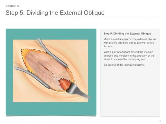 dividing the exteranl oblique