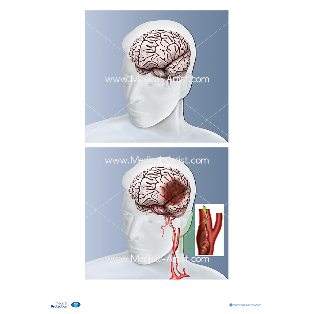 A view of the healthy brain compared to one with stroke