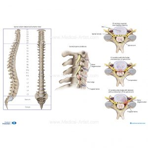 The spine and superior view of sections of the spine and pinched nerve explanation
