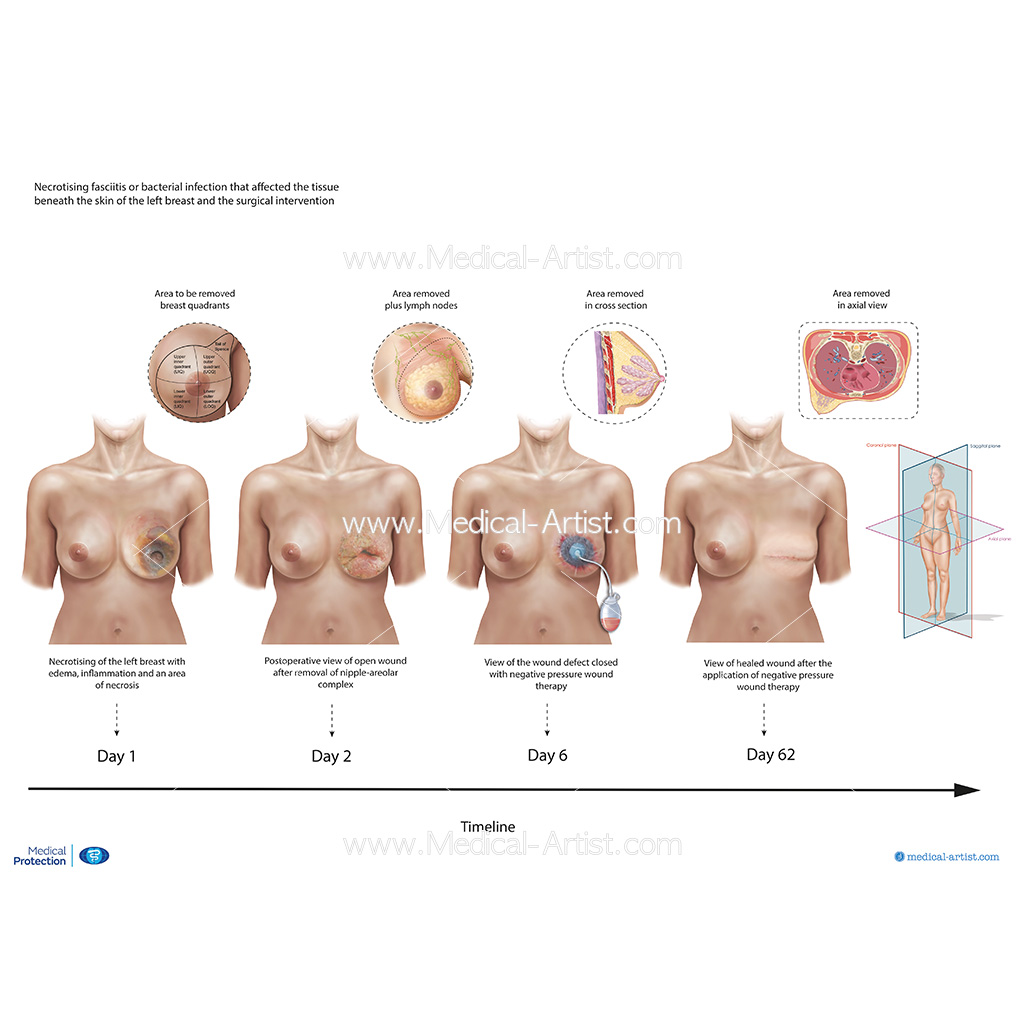 Timeline of the surgery stages for infected breast removal