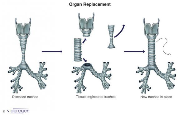 Trachea Organ Replacement Medical Illustration