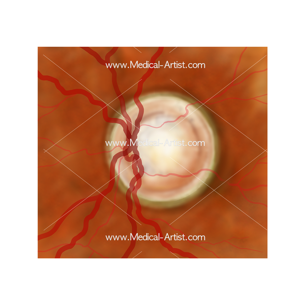 Ophthalmology Glaucomatous cupping illustration