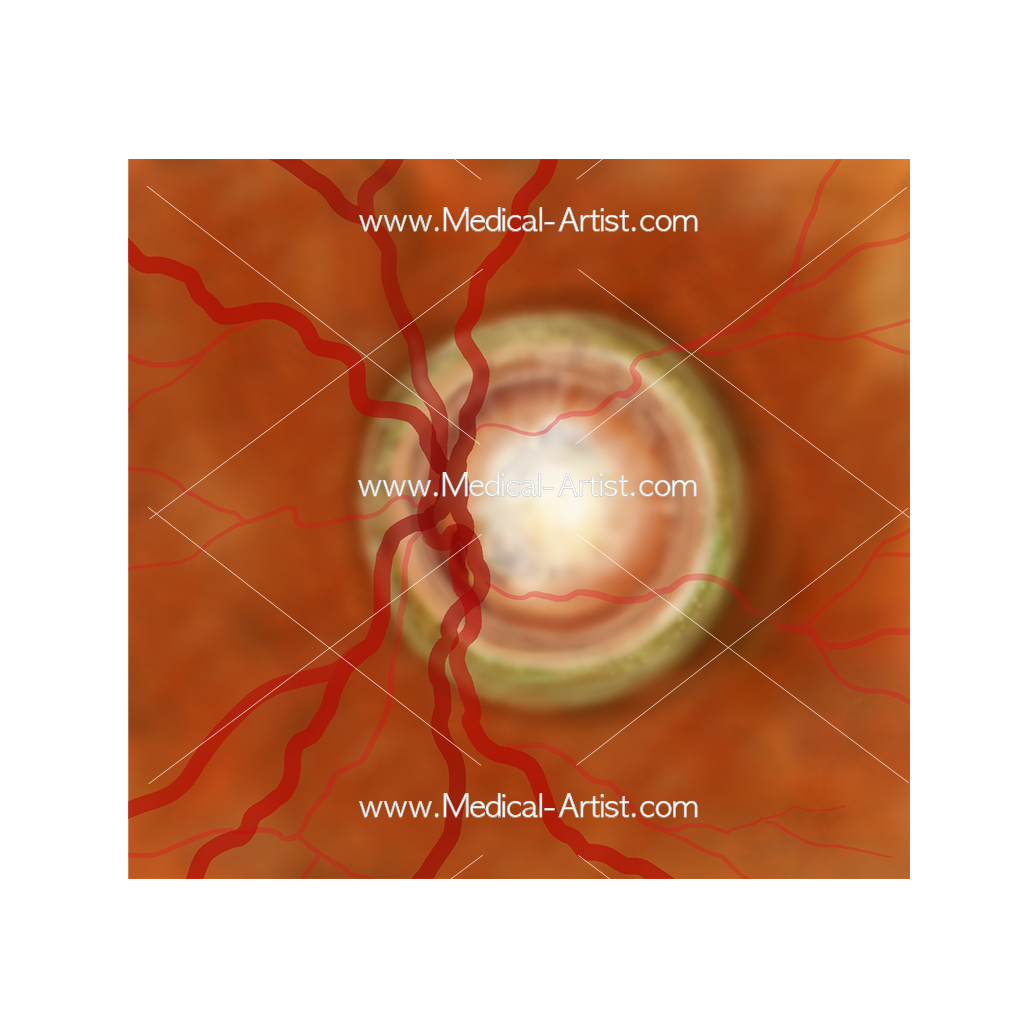 Optic Nerve Head
