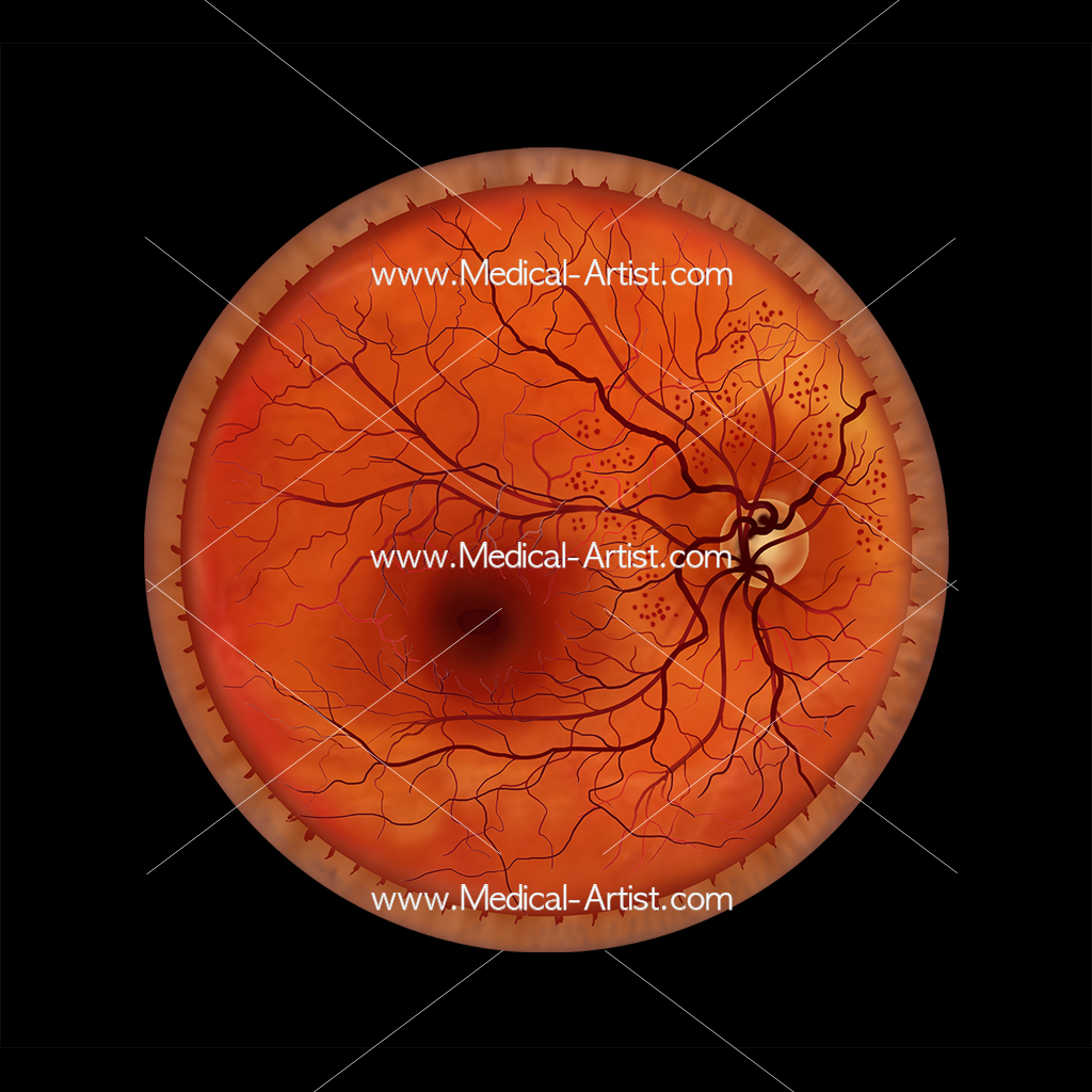 Ophthalmology diabetic retinopathy illustration